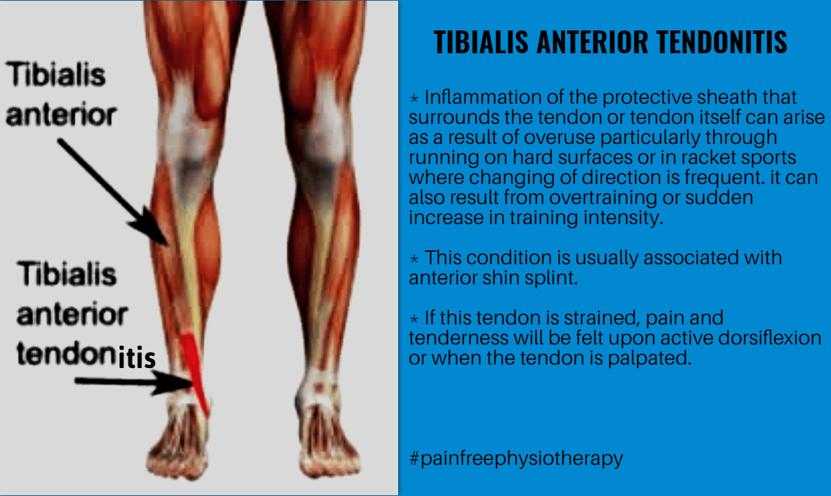 Tibialis Anterior Tendonitis Image Customize Download It For
